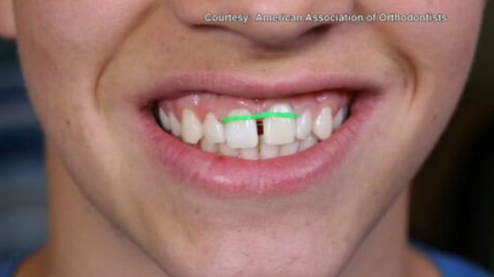 On your side orthodontists call diy braces a dangerous trend wgme solutioingenieria Image collections