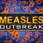 Officials confirm 1st measles case in Michigan this year