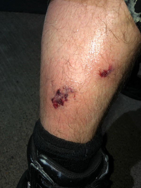 A police officer suffered a leg injury after protesters set off commercial-grade fireworks at a riot at the Portland Police Association building on August 9, 2020. Photo courtesy Portland Police Bureau{ }