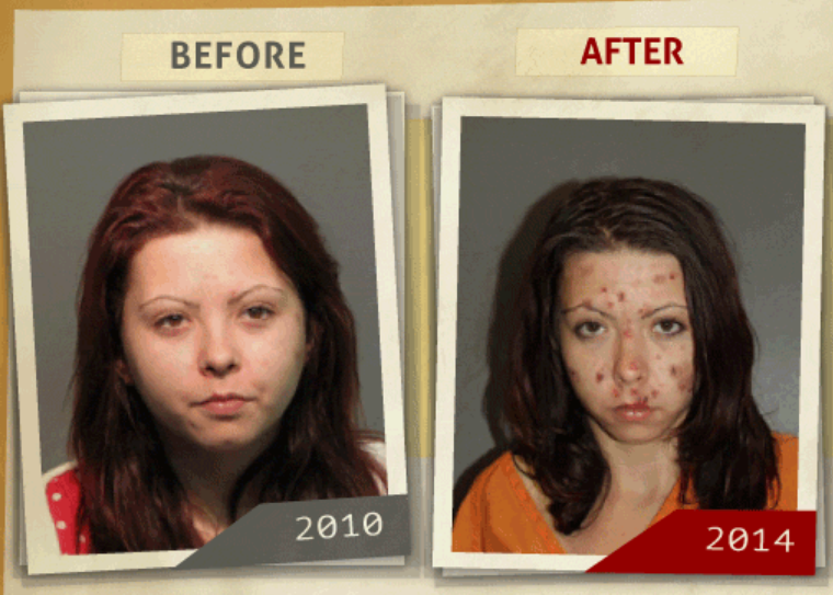 Side-by-side 2010 and 2014 photo taken of woman  who reportedly had a 'possession of Methamphetamine' charge. (Photo, info from rehabs.com/)