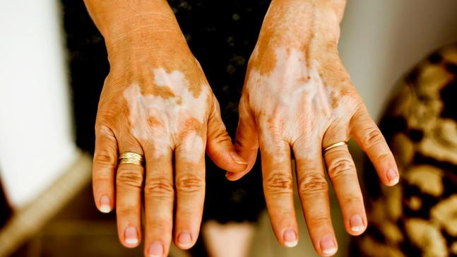 Answers to All of Your Questions About Vitiligo