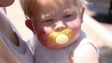 Baby badly burned by garden hose